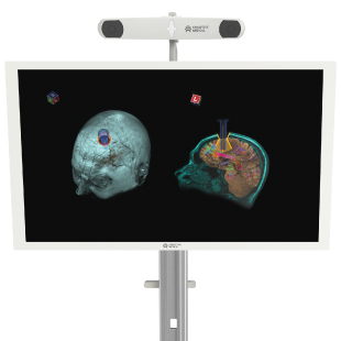 Synaptive Medical Receives Health Canada Approval for BrightMatter Guide: a Surgical Navigation Solution