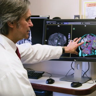 Brain Tumor Surgery with BrightMatter: A Patient's Perspective
