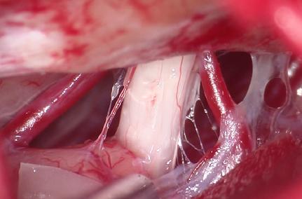 close up of cranial nerve