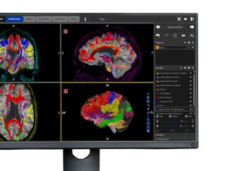 monitor with colorful brains
