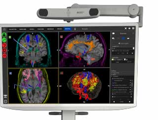 Large monitor with images of a brain scan and colorful tracts and red blood vessels