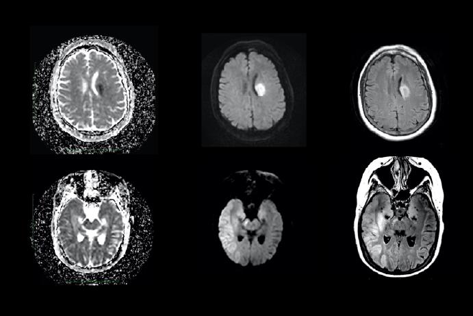 four MRI brain scans on a black background