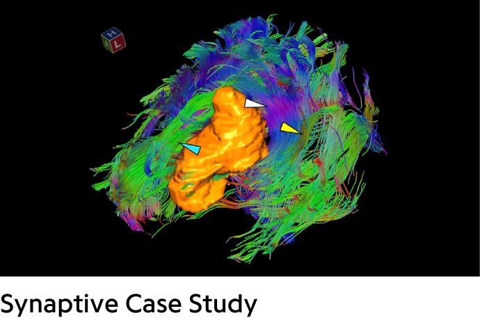 colorful brain with tumor in orange
