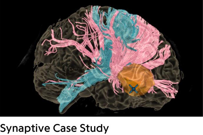Colorful brain with orange tumor