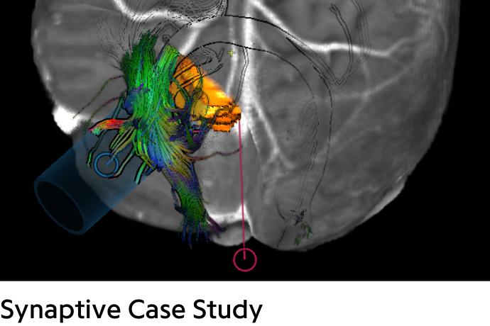 showing path to brain tumor