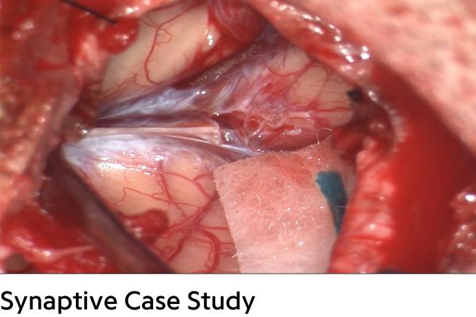 close up of brain surgery